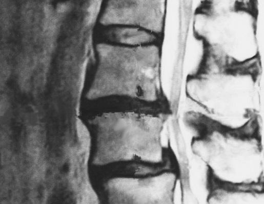 椎間板ヘルニアCT画像